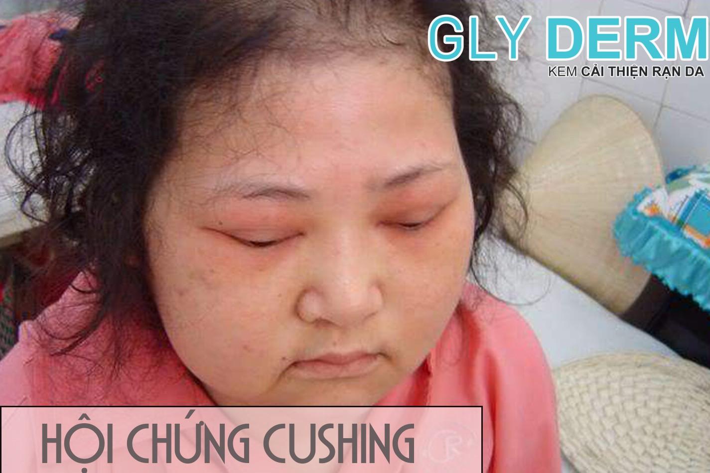 Hội chứng Cushing gây rạn da