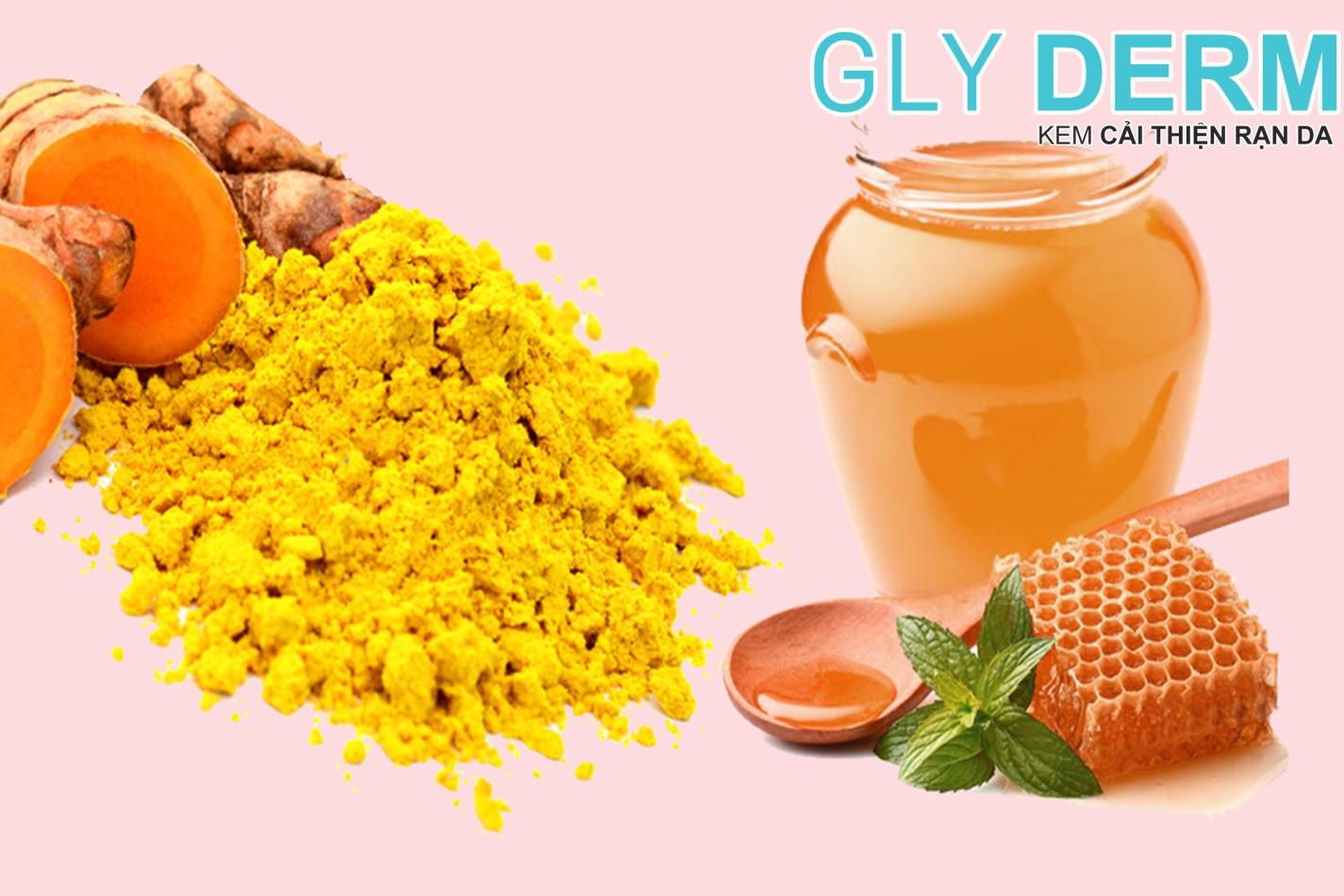 Khắc phục rạn da sau sinh bằng nghệ và mật ong