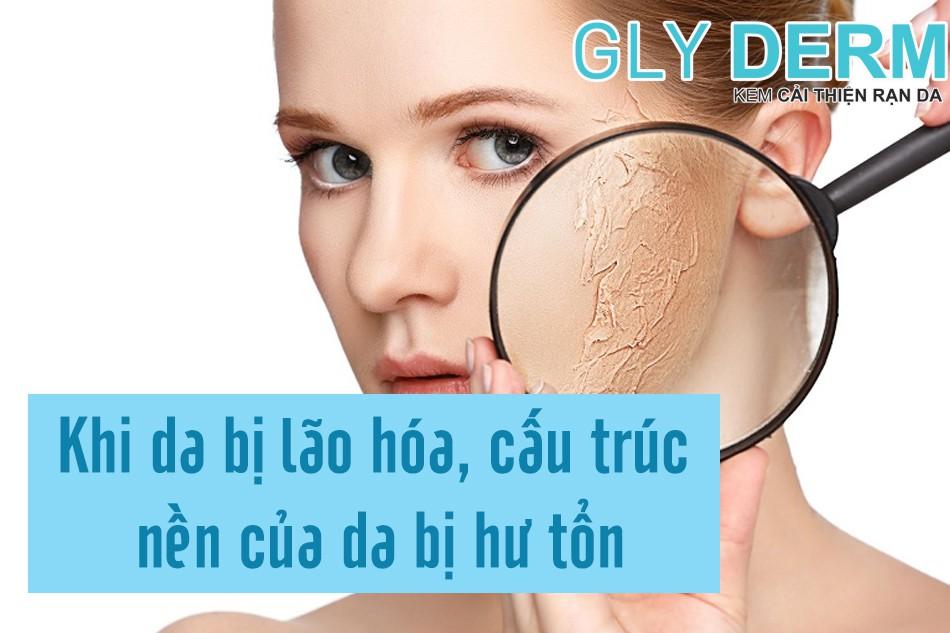 Cấu trúc của làn da của bị hư tổn trong quá trình lão hoá gây nên tình trạng khô ráp da