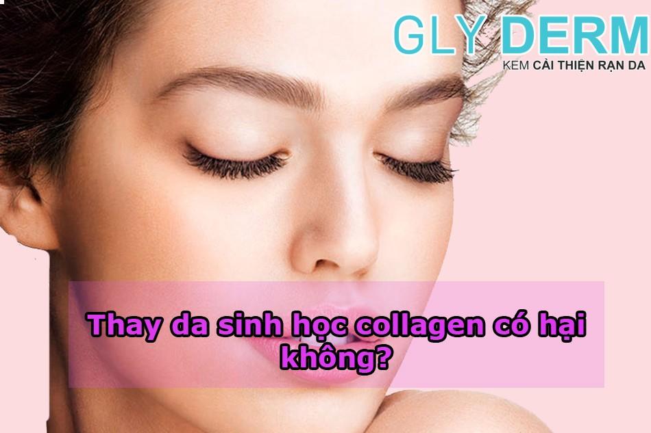 Thay da sinh học collagen có hại không?
