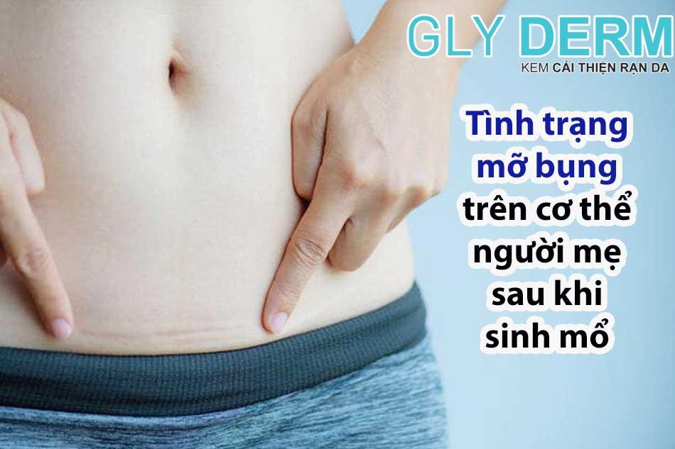 Tình trạng mỡ bụng trên cơ thể người mẹ sau khi sinh mổ