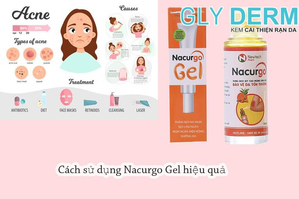 Cách sử dụng Nacurgo Gel hiệu quả