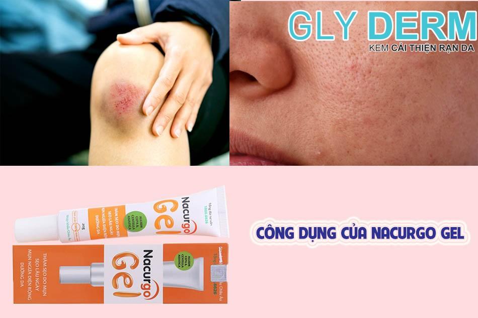 Công dụng của thuốc Nacurgo Gel